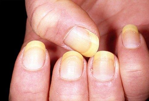 yellownails